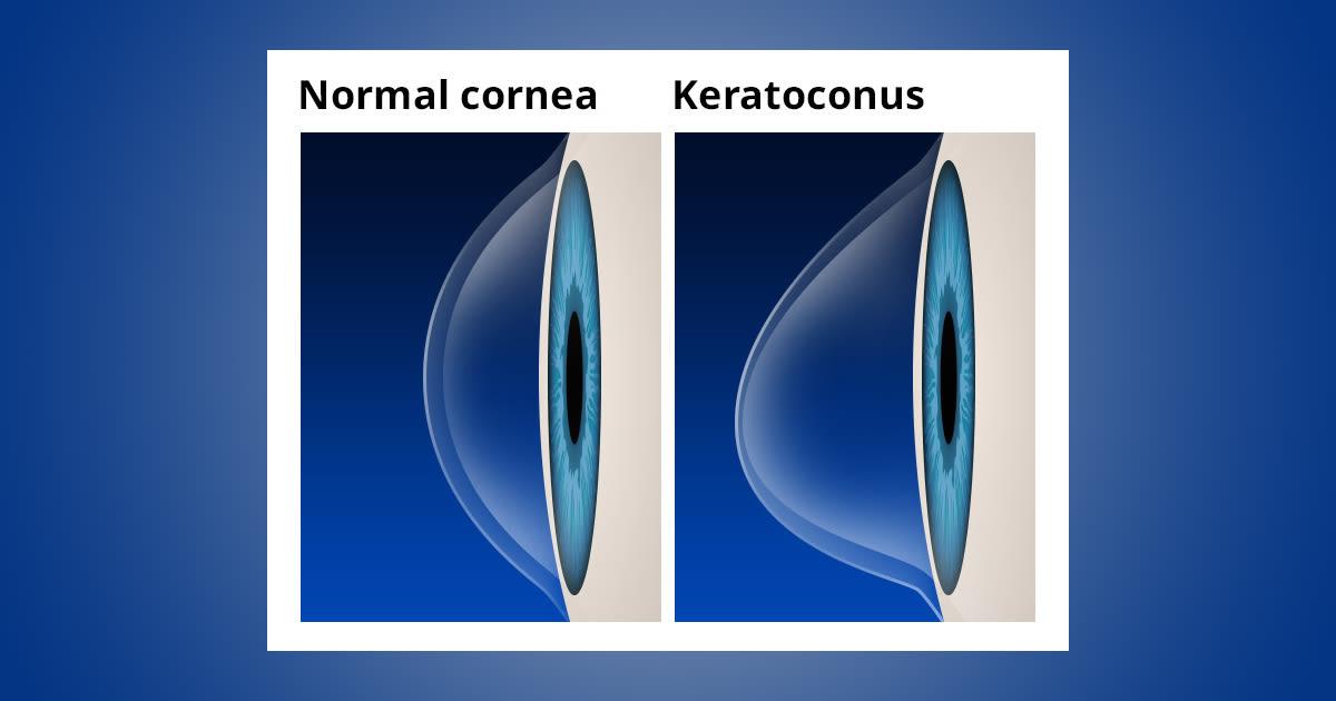 Keratoconus Causes & Symptoms