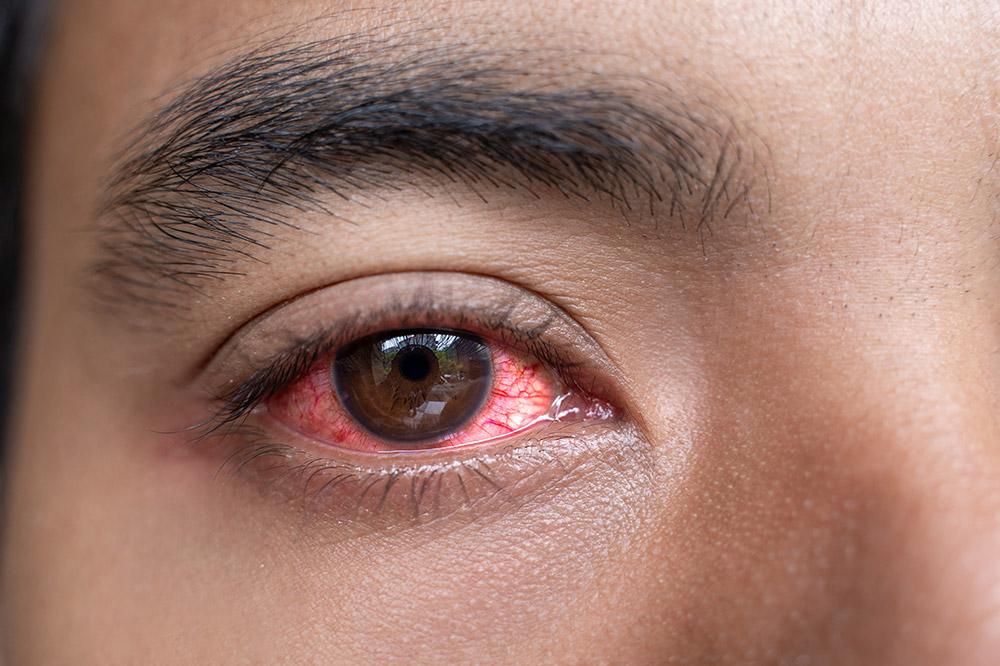 Types of Red Eye
