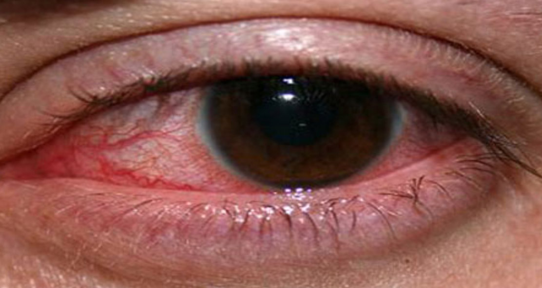 UV Light & its effects to the eye